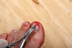 Broken bleeding finger nails. Surgery on a broken bleeding toe nail a man stock images