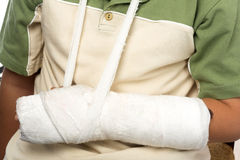 Broken bone Royalty Free Stock Photography