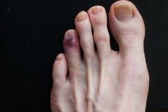 Broken toe showing bruising on skin due to injury. Broken bone on toe showing bruising on skin due to injury stock image