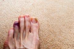 Broken toe showing bruising on skin due to injury. Broken bone on toe showing bruising on skin due to injury stock photos