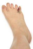 Broken Bruised Toe Over White. Foot with Broken Bruised Toe Over White Royalty Free Stock Image
