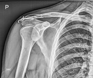 Broken clavicle bone fixation, Fracture repair. Medical xray Stock Photo