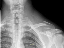 Broken clavicle. Clavicle fracture on chest roentgenogram Royalty Free Stock Photos