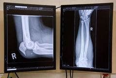 Broken Elbow. A man's broken elbow is shown on the x-ray monitor Royalty Free Stock Photo