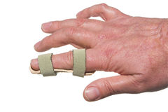 broken finger Royaltyfria Bilder