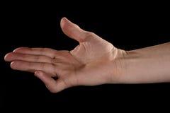 Torn tendon in finger Stock Image