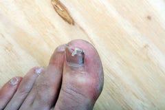 Broken fingernail. Toenail legs man royalty free stock photo