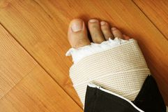 Broken Foot!!. Close up image of male with broken foot in cast stock photo