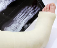 Broken foot. In a cast with x-ray of  behind Stock Photography