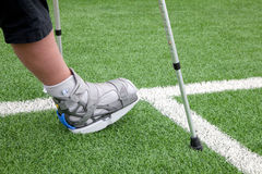Broken foot, crutches - sports injury Royalty Free Stock Photography