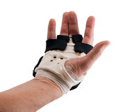 Broken Hand. A picture of a broken right hand with a specialised splint or brace, Middle MCP and finger injury stock photos