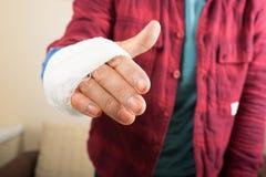 broken hand royaltyfria bilder