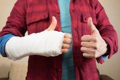 broken hand royaltyfri fotografi