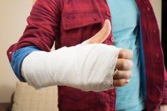 broken hand arkivfoton