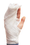 Broken hand. Royalty Free Stock Photography