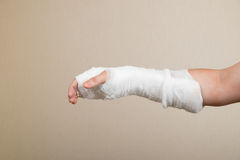 Broken hand with bandage Royalty Free Stock Photos