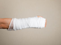 Broken hand with bandage Stock Photos
