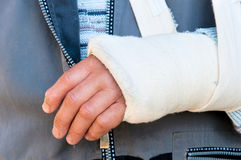 Broken hand. Man's arm in cast and sling Royalty Free Stock Photo