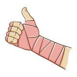 Broken Hand Wrapped in Elastic Bandage While Doing Thumb Up Stock Photo