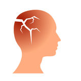 Broken head vector concept Royalty Free Stock Photos