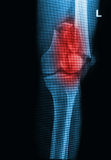 Broken human thigh x-rays image Stock Images