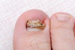 Broken ill nail on leg Stock Image