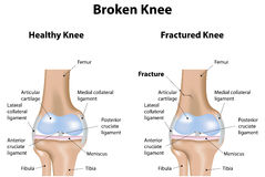 Broken Knee Fracture Royalty Free Stock Photos