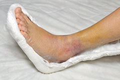 Broken leg Royalty Free Stock Images