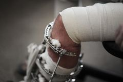 Free Broken Leg Royalty Free Stock Photo - 18618695