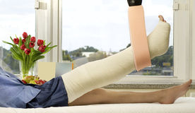 Broken Leg Royalty Free Stock Images