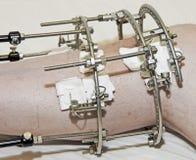 Free Broken Leg Stock Images - 34601574