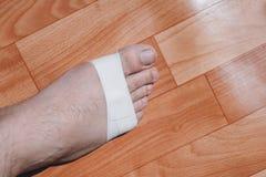 Broken leg. royalty free stock photos