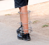Broken leg Stock Image