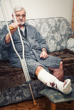 Broken leg Royalty Free Stock Image