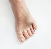 Broken Little Toe. Black and blue foot with broken little toe royalty free stock photos