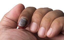 Broken nail Royalty Free Stock Image