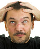Broken nose and black eye royalty free stock image