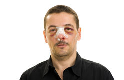 Broken nose post operation royalty free stock images