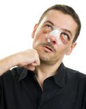 Broken nose post operation Royalty Free Stock Photos