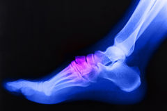 Broken right foot ankle Xray Stock Photography