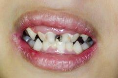 broken tänder Arkivbild