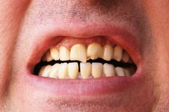 Broken Teeth Royalty Free Stock Image
