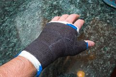 Broken Thumb royalty free stock image