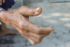 Broken thumb. Of old woman Stock Images