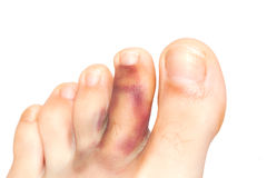 Broken toe. Isolated on white Stock Images