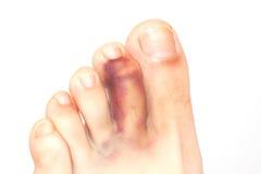 Broken toe stock photos