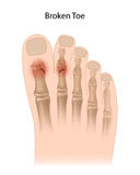 Broken toe. Common sites of toe bone fractures, eps10 Stock Photo