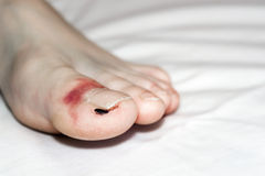 Broken Toe. Big toe on left leg recovering after breaking royalty free stock image
