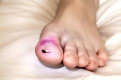 Broken Toe Stock Photo