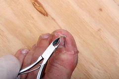 Broken toe nail Royalty Free Stock Photos